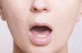 口唇ヘルペス 症状 経過